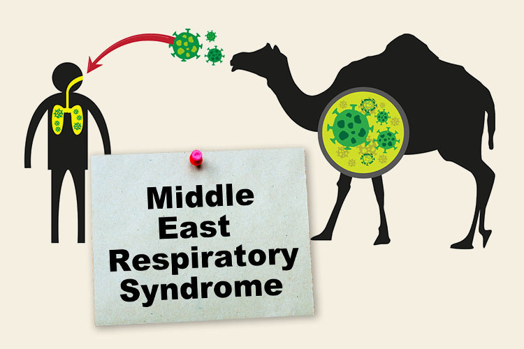 Middle East Respiratory Syndrome thumbnail